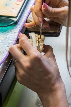 articulator: Dental laboratory, manufacturing dental prostheses Stock Photo