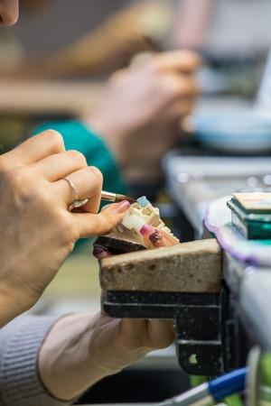 dental laboratory: Pr�tesis dentales de fabricaci�n de laboratorio dental