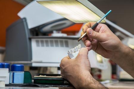 articulator: Dental laboratory manufacturing dental prostheses