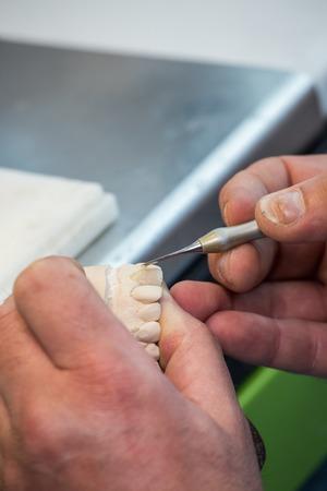 Dental laboratory, manufacturing dental prostheses Stock Photo