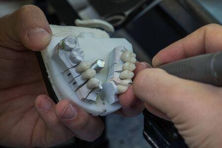 laboratorio dental: Laboratorio dental, pr�tesis dentales de fabricaci�n Foto de archivo