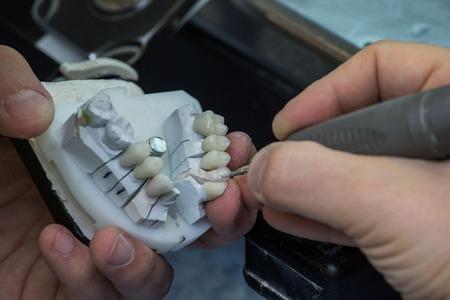 laboratorio dental: Pr�tesis dentales de fabricaci�n de laboratorio dental
