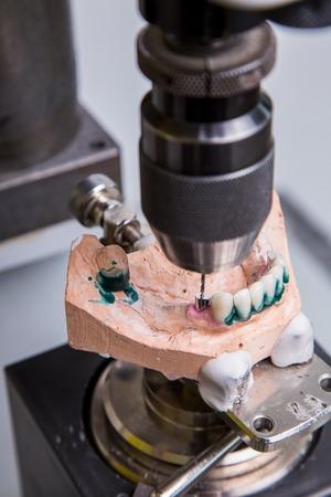laboratorio dental: Laboratorio dental, prótesis de fabricación, taladro en la acción Foto de archivo
