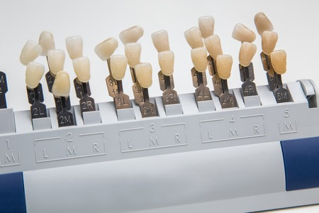 artificial teeth: Closeup of palette for tooth color color matching Choice of color of a artificial tooth,and teeth whitening Stock Photo
