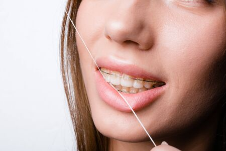 Close-up of a smile A beautiful girl who cleans teeth and braces after eating flossing
