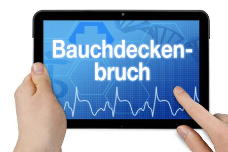 Tablet with medical touchscreen and the abdominal wall hernia - abdominal wall fracture Stok Fotoğraf