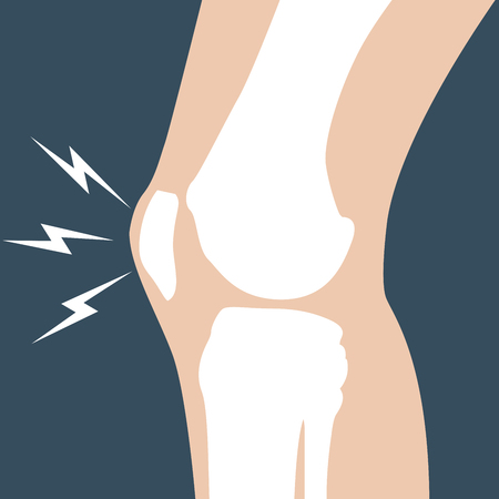 knee: Knee pain - joint bones, orthopedic Illustration