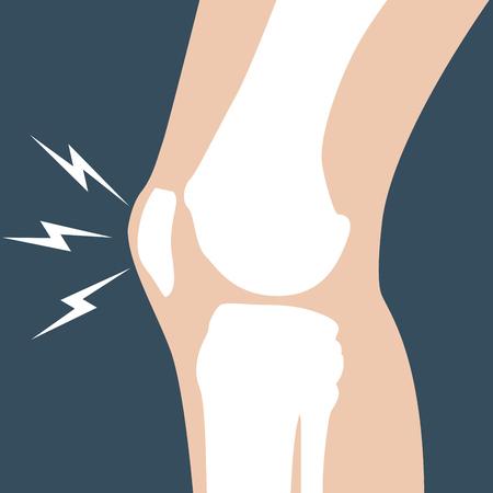bones: Knee pain - joint bones, orthopedic Illustration