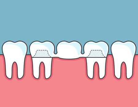 Dental bridge and row of teeth