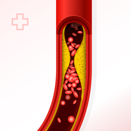Illustration of artery section with cholesterol buildup.