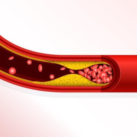 Thrombosis of artery