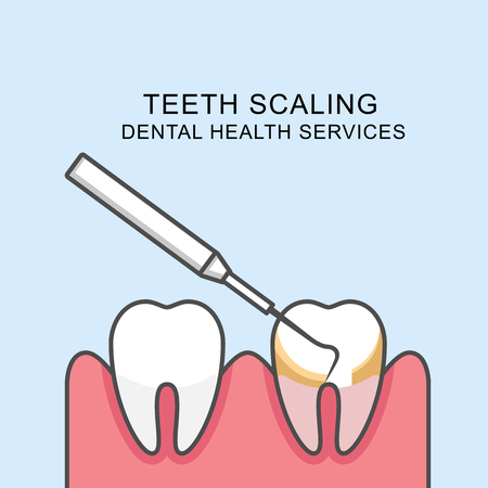 Teeth scaling icon - scaling tooth with periodontal probe