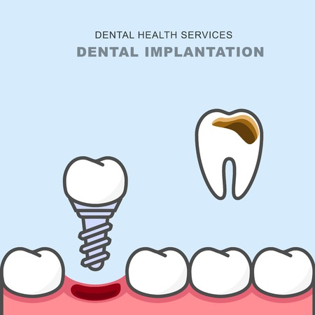 Dental implant instead of carious tooth - teeth prosthetics