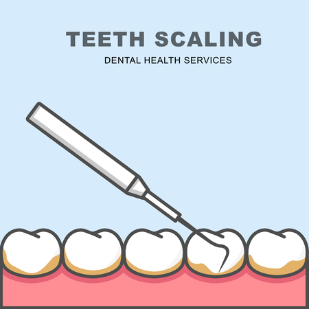 Tooth scaling icon - row of tooth, cleaning with periodontal probe Illustration