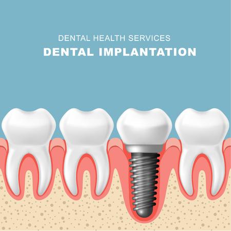 Dental implantation - row of teeth in gum with implant