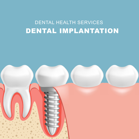 Gum section with dental implantat - row of teeth Illustration