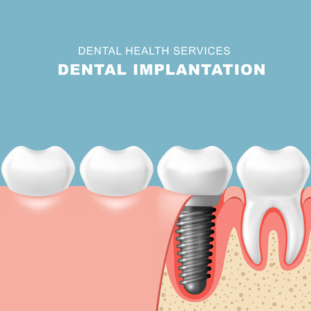 Teeth and dental implantat inserted into gum - tooth implantation Illustration