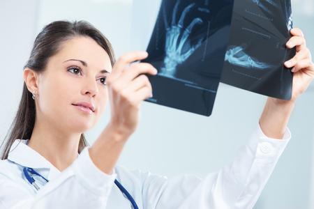 Young woman doctor looking at x-ray photo  photo