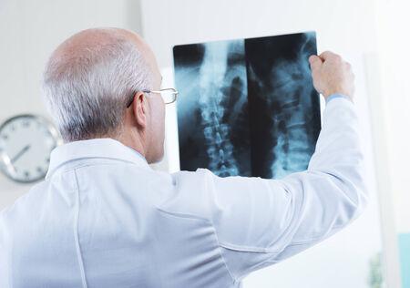 columna vertebral humana: Doctor de sexo masculino mayor que mira las im�genes de rayos x de la columna vertebral humana. Foto de archivo