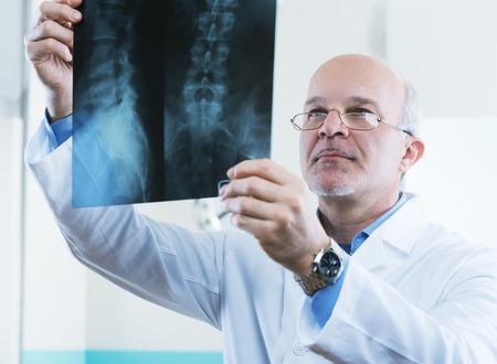 columna vertebral humana: Doctor de sexo masculino mayor que mira en las im�genes de rayos X de la columna vertebral humana.