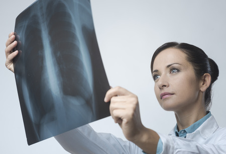cancer research: Confident female doctor examining accurately a rib cage x-ray. Stock Photo
