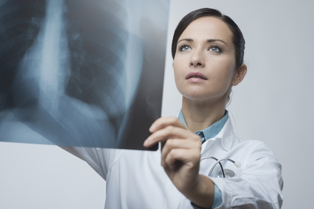 rib cage: Confident female doctor examining accurately a rib cage x-ray. Stock Photo