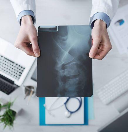 columna vertebral humana: Radi�logo cheching una imagen de rayos X de la columna vertebral humana, las manos de cerca con el escritorio en el fondo, vista desde arriba