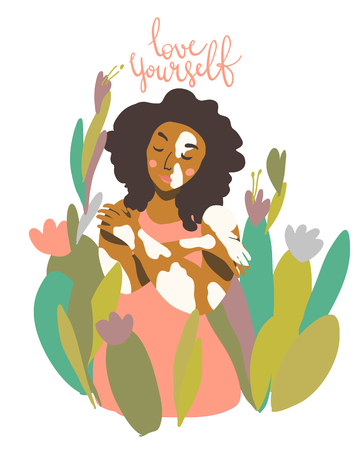 Sweet trendy pieceful image, self acceptance, body positivity. Woman with vitiligo skin condition. Love yourself lettering. Motivation vector art in minimal style.