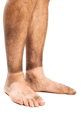 pies masculinos: los pies sucios
