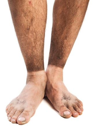 dirty feet: dirty feet in sand and mud with traces of socks Stock Photo