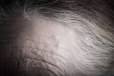 Forehead of elderly woman. Closeup. Toned. Stock Photo