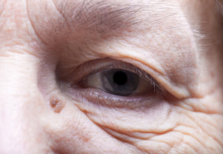 grayness: Part of portrait of elderly woman. Eyes.