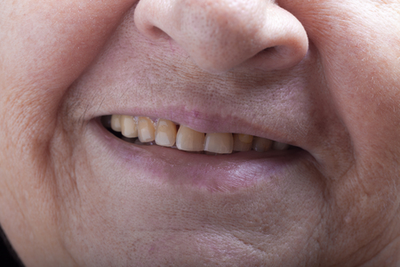grayness: Part of portrait of elderly woman. Mouth.