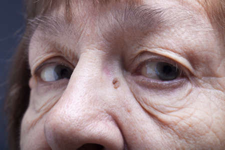 grayness: Part of portrait of elderly woman Eyes.