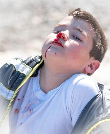Jongen van tien jaar oud met zijn neusbloeding na een conflict Stockfoto