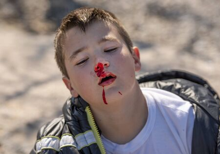 Boy ten years old with his nose bleeding Stockfoto