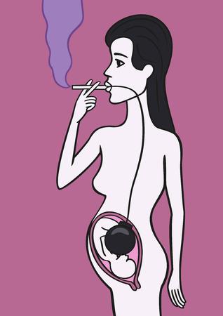 sick malady: Pregnant woman smoker