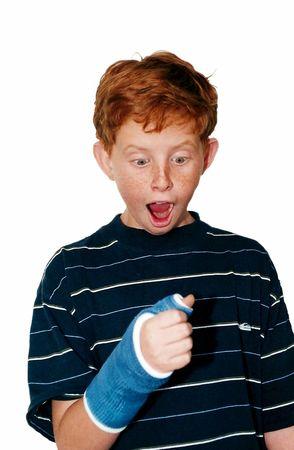 arm: Boy with Broken Arm Stock Photo