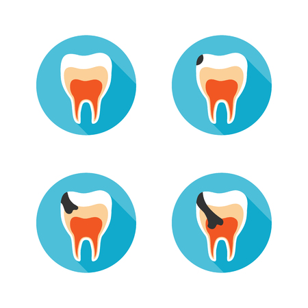 bacterial plaque: Set icons with flat design elements of tooth decay disease. Stages of tooth decay on white background. Modern pictogram collection concept Illustration