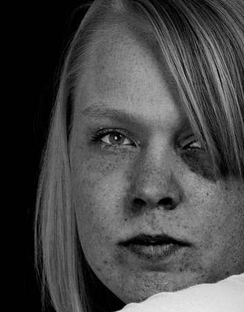 A sad girl with a black eye. photo
