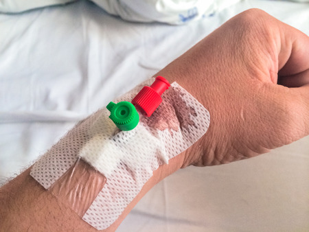 bloodstain: Intravenous cannula, venflon inserted on mans hand with bloodstain.