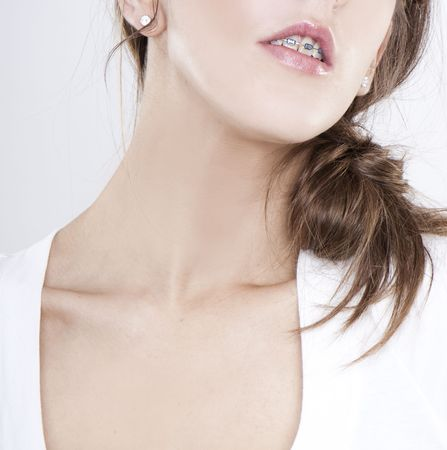 closeup of woman with orthodontic appliance on white photo