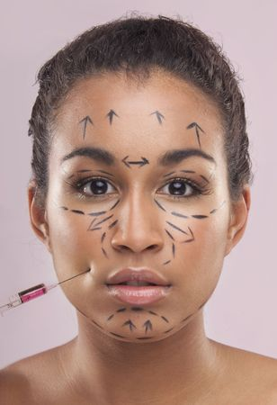Drawn lines on a mixed colour  womans face as marks for facial plastic surgery photo