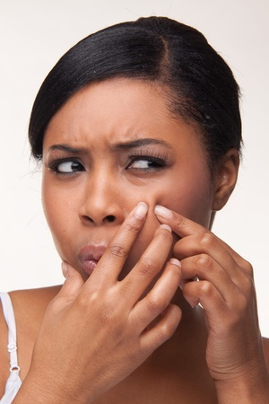 Pimple , spot on african beauty woman face Stock Photo - 8269495