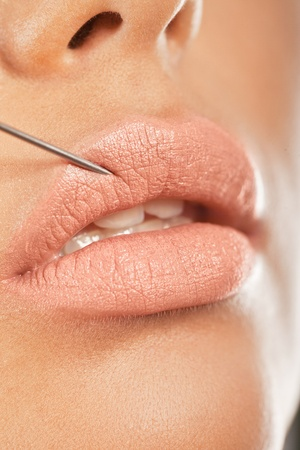 enhance: Botox Injection In The Lip. Closeup of a needle giving enhancing botox treatment for fuller lips.