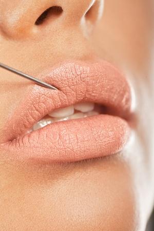 inyeccion intramuscular: Inyección de Botox en el labio. Primer plano de una aguja de dar un tratamiento de Botox para la mejora de unos labios más rellenos.