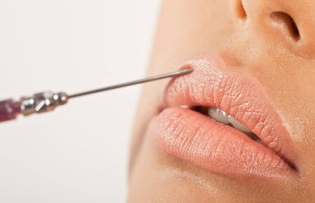 Lip Enhancement Treatment. Closeup of a hypodermic needle being using to inject the upper lip in an enhancement treatment. photo