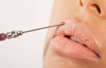 inyeccion intramuscular: Tratamiento de labios de mejora. Primer plano de una aguja hipodérmica que se utiliza para inyectar el labio superior en un tratamiento de mejora. Foto de archivo