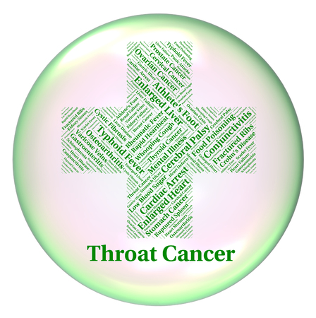 tumors: Throat Cancer Indicating Malignant Growth And Tumors