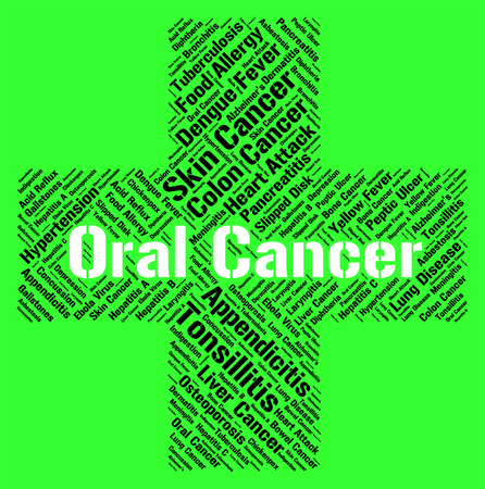 malignant growth: Oral Cancer Showing Cancerous Growth And Sickness Stock Photo